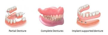 Graphic representation of partial denture, complete dentures and implant supported denture