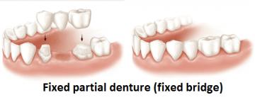 Graphic representation of fixed partial denture (fixed bridge)