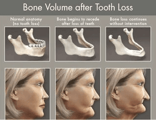 diagram showing the weakening of bone volume after significant tooth loss
