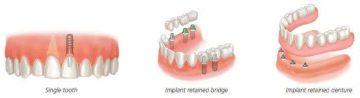 Graphic representation of single tooth, Implant retained bridge, implant retained denture