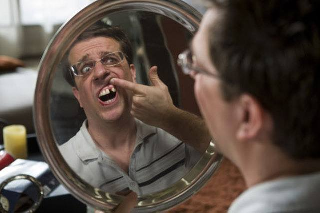 Man looks at missing tooth in mirror